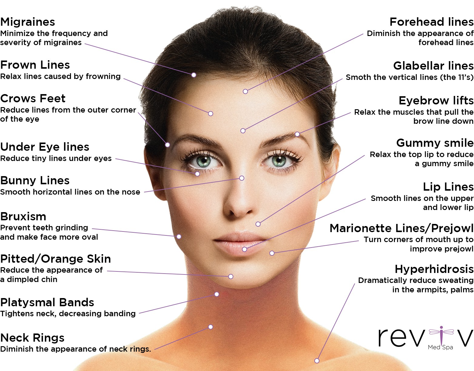 Botox Treatment Uses Image